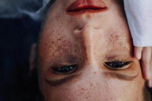 הקשר בין כתמים בעור הפנים לנסיעה ברכב